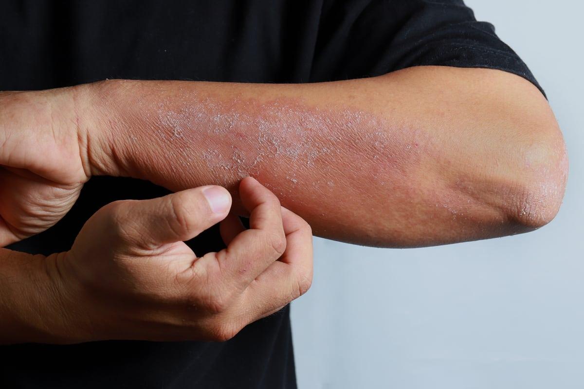 Can CBD Oil Cure Eczema?